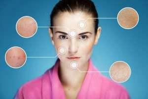 Les problèmes de peau touchent 50% des européens